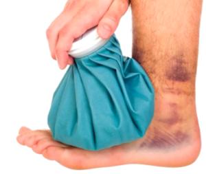 Растяжение связок голеностопа